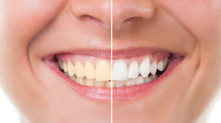 Boclair Dental Care Teeth Whitening